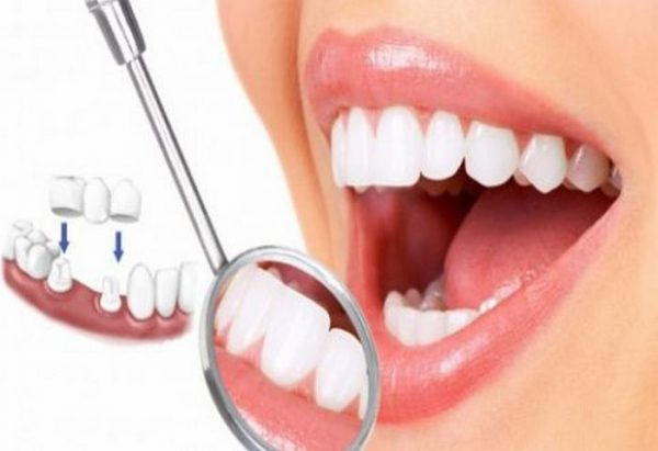 Làm răng thẩm mỹ ở đâu tốt tại Hà Nội?