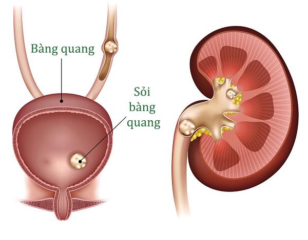 Hình ảnh mô tả sỏi bàng quang trong hệ tiết niệu.