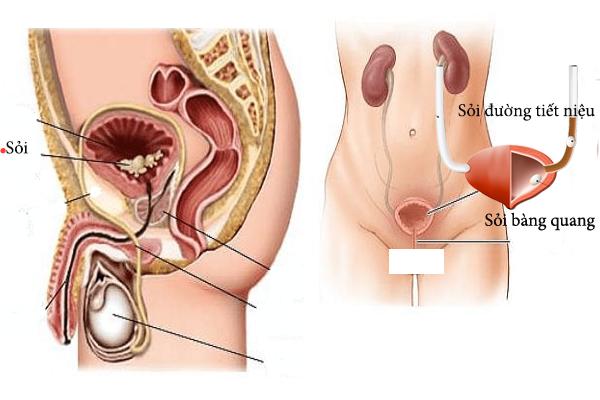 Hình ảnh mô tả sỏi bàng quang trong cơ thể người.