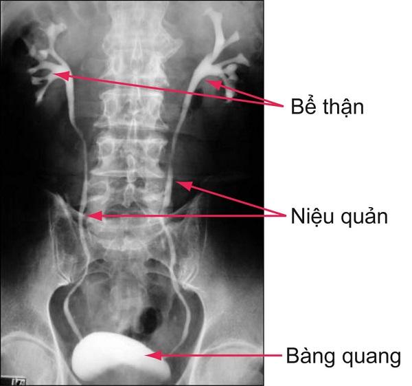 Vị trí sỏi tiết niệu khi chụp x quang thận thường.