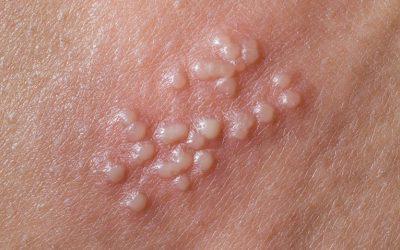 Bệnh Herpes sinh dục (mụn rộp sinh dục) là gì?