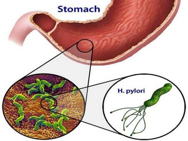 vi khuẩn HP có chữa được không là nỗi băn khoăn của rất nhiều người