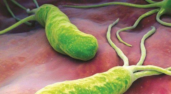 hôn có lây nhiễm vi khuẩn HP không?