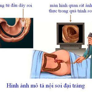 Khi nào cần nội soi dạ dày đại tràng