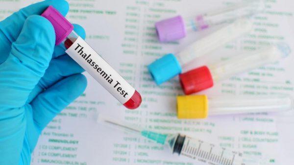 xét nghiệm máu giúp phát hiện những bất thường để phát hiện sớm bệnh thalassemia