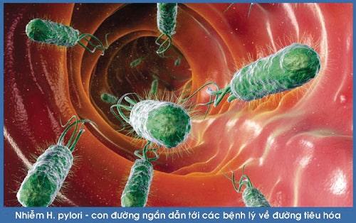 nhiều người không biết vi khuẩn HP sống được bao lâu?