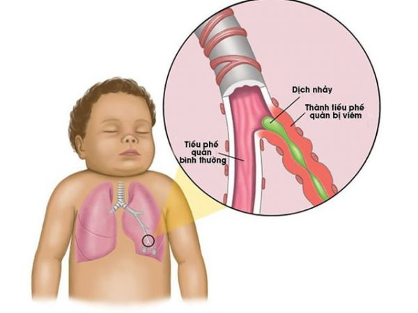 nguyên nhân gây viêm tiểu phế quản ở trẻ nhỏ