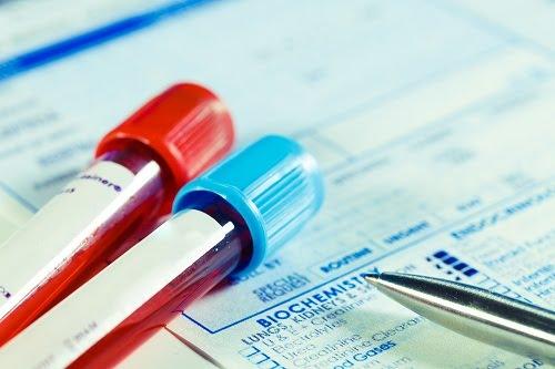 xét nghiệm máu phát hiện chỉ số ggt