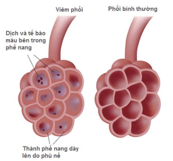 dấu hiệu trẻ bị viêm phổi