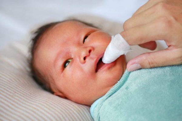vệ sinh lưỡi cho trẻ bằng nước muối sinh lý để phòng bệnh nấm miệng