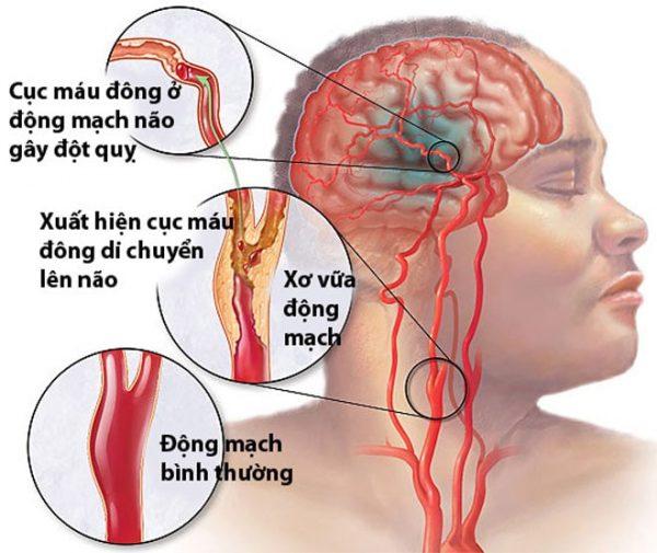 mỡ máu cao có thể gây tai biến mạch máu não