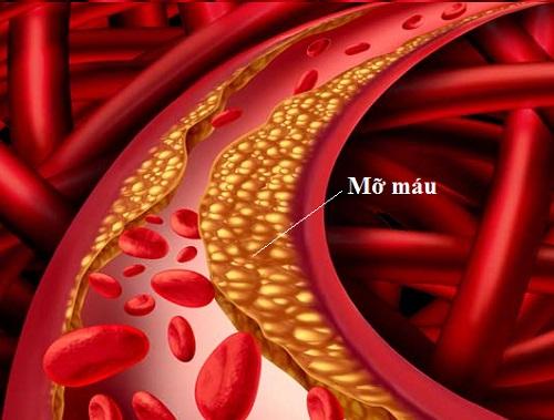 mỡ máu là gì?