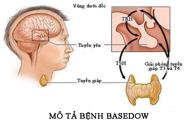 mô tả bệnh basedow