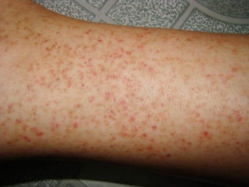 biểu hiện sốt xuất huyết giảm tiểu cầu dưới da