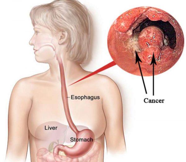trào ngược dạ dảy thực quản dễ gây ung thư thực quản