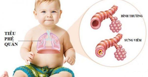 Viêm phế quản co thắt ở trẻ em rất nguy hiểm vì vậy ba mẹ cần nhận biết sớm và có biện pháp xử trí kịp thời.