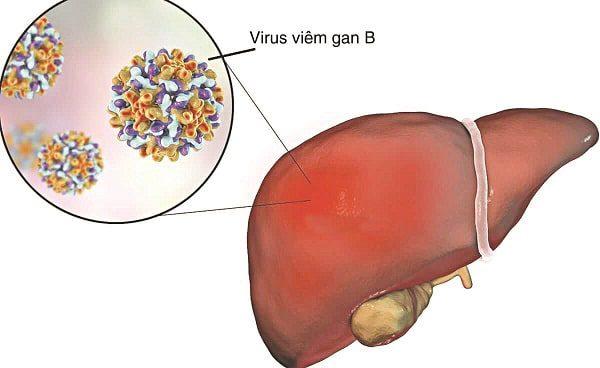bệnh viêm gan b