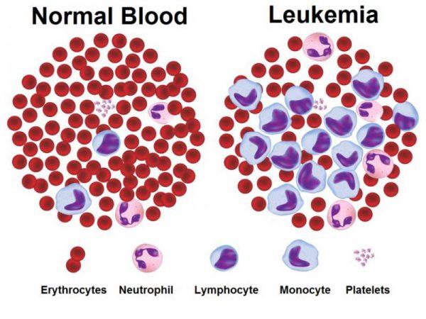 biểu hiện bệnh leukemia