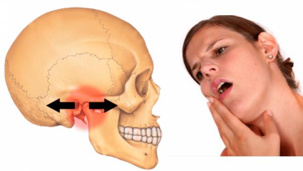 biểu hiện của viêm khớp thái dương hàm