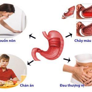 Các triệu chứng đau dạ dày bạn hoàn toàn có thể nhận biết sớm