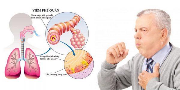 biểu hiện viêm phế quản mạn tính lâm sàng