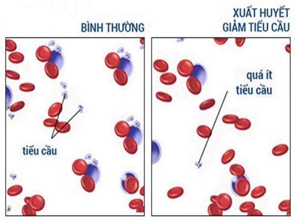 xuât huyết giảm tiểu cầu vô căn