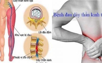 Đau thắt lưng ở nam giới tiềm ẩn nhiều bệnh lý nguy hiểm
