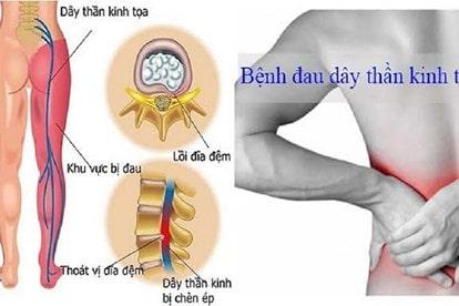 đau thắt lưng ở nam giới do đau dây thần kinh tọa