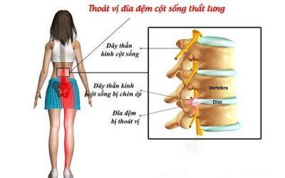 Bệnh đau thắt lưng ở phụ nữ có nguy hiểm không?
