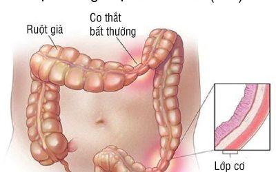 Hội chứng ruột kích thích: Nguyên nhân, triệu chứng, chẩn đoán và cách điều trị