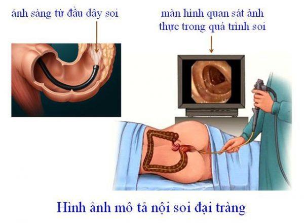 quá trình nội soi đại tràng