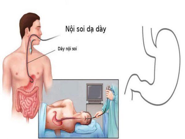 nội soi dạ dày không đau