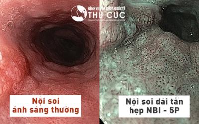 """Nội soi đại tràng """"Không đau- Phát hiện sớm ung thư"""" với công nghệ NBI"""