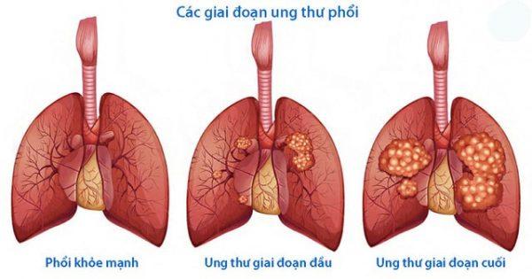 pdw cao có thể gây ung thư phổi