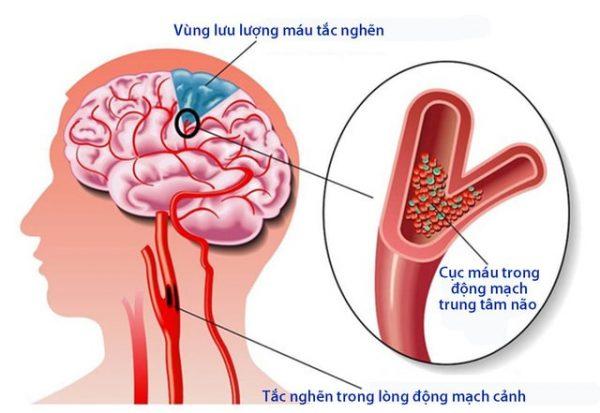 tai biến mạch máu não là gì
