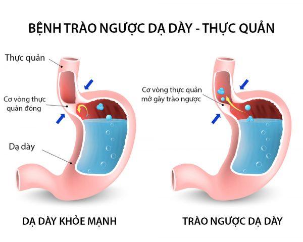 bị nghẹn ở cổ họng và ợ hơi có thể là biểu hiện của bệnh trào ngược dạ dày thực quản