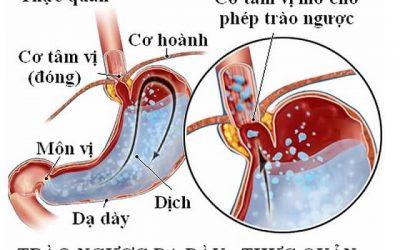 Trào ngược dạ dày thực quản có nguy hiểm không?