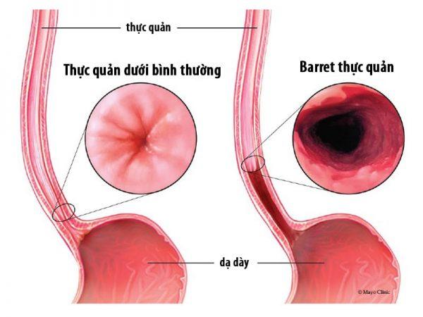 trào ngược dạ dày thực quản dễ gây barret thực quản