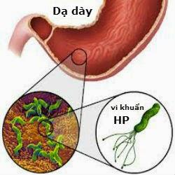 vi khuẩn HP gây triệu chứng đau dạ dày
