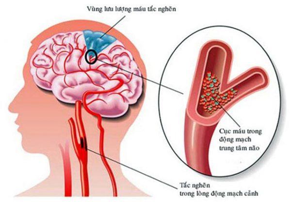 triệu chứng thiếu máu não