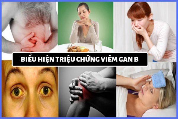 các triệu chứng của bệnh viêm gan b