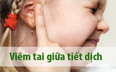 Những điều cần biết về bệnh viêm tai giữa tiết dịch ở trẻ