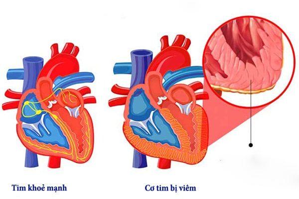 bệnh viêm cơ tim có lây không