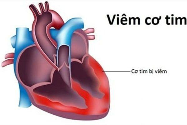 dấu hiệu bệnh viêm cơ tim