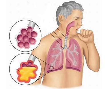 nhiễm khuẩn đường đường hô hấp có thể nổi hạch ở cổ