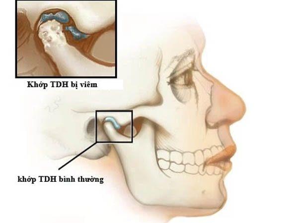 viêm khớp thái dương hàm là gì
