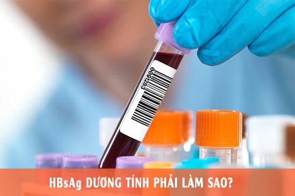 xét nghiệm HBsAg giúp phát hiện bạn có bị nhiễm virus viên gan B hay không
