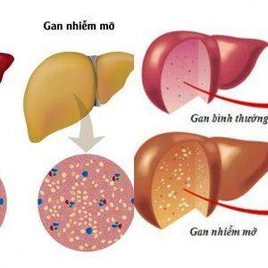 Xét nghiệm chức năng gan gồm những gì?