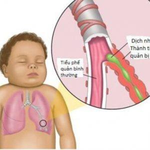 4 biến chứng nguy hiểm của bệnh cảm lạnh trẻ dễ mắc phải
