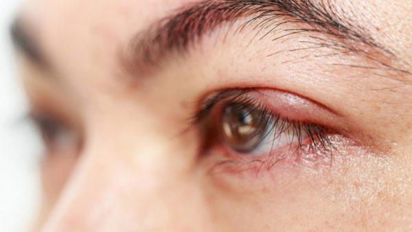 Lý do khiến mí mắt bị ngứa và sưng